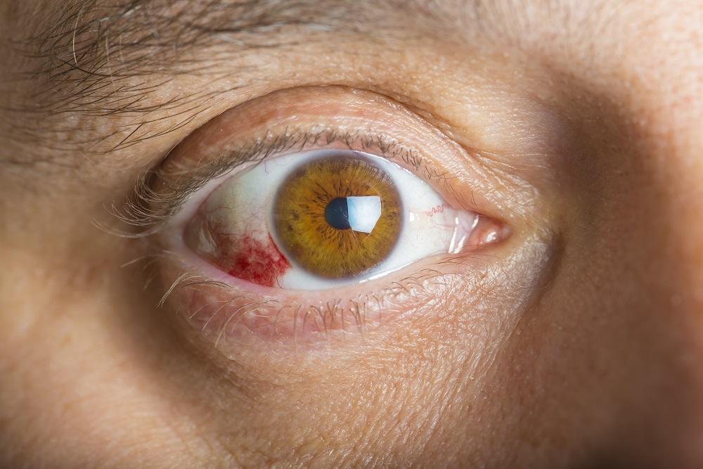 Consejos útiles para prevenir un derrame ocular